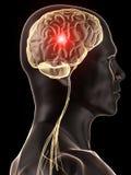 Hoofdpijn/migraine Stock Foto's