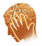 Hoofdpijn, migraine, depressie Royalty-vrije Stock Foto