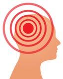 Hoofdpijn of migraineconcept Stock Afbeeldingen