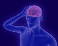Hoofdpijn x-ray beeld van menselijk lichaam met zichtbare hersenen 3d rende Royalty-vrije Stock Afbeeldingen