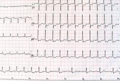 Hoogste mening van een elektrocardiogram in gedrukte document vorm voor gezondheidszorg en medische concept of achtergrond electr royalty-vrije stock afbeeldingen