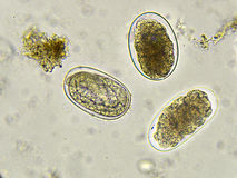 Hook worm. Eggs of Hookworm in stool, analyze by microscope Stock Photography