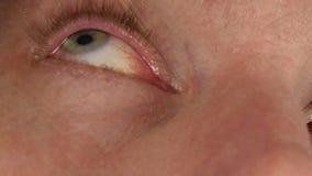 Hordeolumziekte in het oog, mens het druipen behandelingsdalingen aan zijn oog besmetting en inflamnmation van oog stock videobeelden