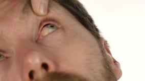 Hordeolumziekte in het oog, mens het druipen behandelingsdalingen aan zijn oog besmetting en inflamnmation van oog 4K stock videobeelden