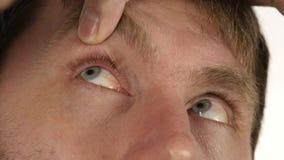 Hordeolumziekte in het oog, mens het druipen behandelingsdalingen aan zijn oog besmetting en inflamnmation van oog 4K stock video