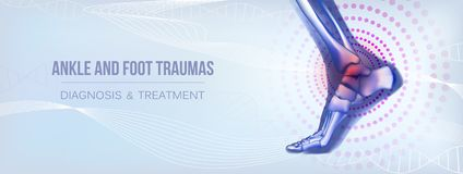 Horizontal ankle and foot traumas banner for social media. Horizontal light blue banner with ankle and foot joints traumas concept. For advertising, medical royalty free illustration