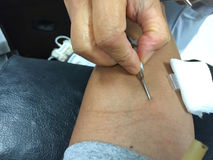 Horizontal photo of closeup asian male get injection on his arm. Before blood donation Royalty Free Stock Images