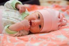 Hormonaler Hautausschlag in einem neugeborenen lizenzfreie stockfotografie