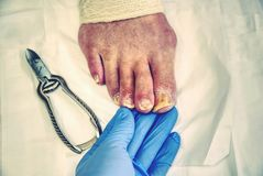 Hospital manicurist with pedicure pliers trimming old person toenail. Ill nails lift away from its nail bed stock image