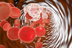 Hospitalisé de sang avec l'inflammation images libres de droits