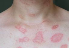 Hot rash. Ill allergic rash dermatitis eczema skin of patient,Hot rash Stock Images