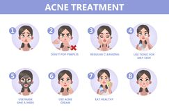 How to get a clear face instruction. Tips for acne treatment. How to get a clear face instruction. Problem with face. Healthcare and beauty. Blackheads and stock illustration