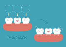 How to of invisible braces by tooth concept Illustrator.  Royalty Free Stock Photos