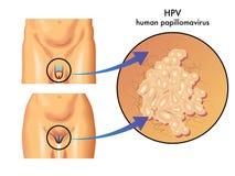 HPV (menselijke papillomavirus) Stock Afbeelding