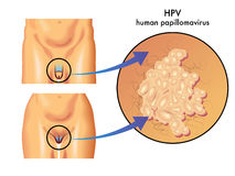 HPV (papillomavirus umano) Immagine Stock
