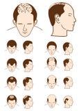 hårförlust Arkivfoton