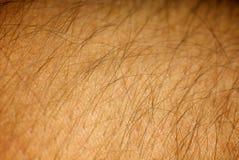 hud Arkivfoto