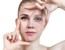 Hudbehandling och makeup för ung kvinna före och efter royaltyfria foton