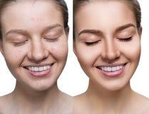 Hudbehandling och makeup för ung kvinna före och efter royaltyfri bild