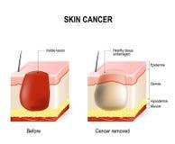 Hudcancer stock illustrationer