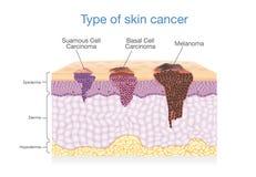 Hudlagret har typ 3 av cancer i en stock illustrationer