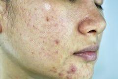 Hudproblem med aknesjukdomar, slut upp kvinnaframsidan med whiteheadfinnar, menstruationutbrytning arkivbild