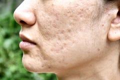 Hudproblem med aknesjukdomar, slut upp kvinnaframsidan med whiteheadfinnar, menstruationutbrytning royaltyfri foto