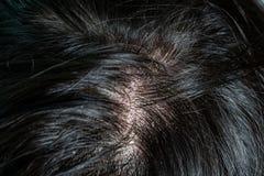 Hudsjukdomar, p? skalperar arkivbilder