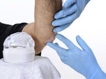 Hudspecialisten besöker en vuxen man som lider från psoriasis på armbågen Royaltyfri Fotografi