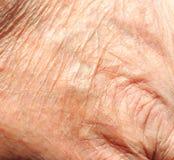 Hudtextur, gammal hud. Fotografering för Bildbyråer