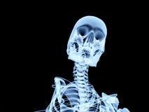 Hueso 3 de la radiografía Imágenes de archivo libres de regalías