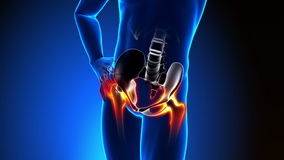 Hueso de la cadera - dolor en hueso de la cadera - hueso lastimado de la cadera stock de ilustración