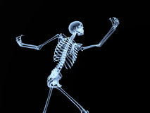 Hueso de la radiografía Foto de archivo libre de regalías