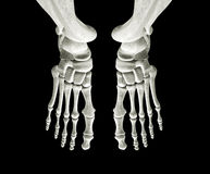 Huesos de pie Imagen de archivo libre de regalías