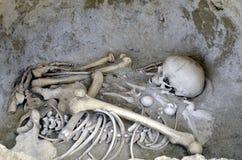 Huesos humanos Foto de archivo