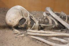 Huesos humanos Fotografía de archivo