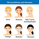 Huidproblemen en ziekten vector illustratie