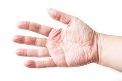 Huidziekte Het Flardtest van de huidallergie aangaande Rug van het Geduldige Tonende Roodheid en Zwellen dermatitis Stock Fotografie