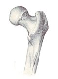 Human anatomy - femur, superior part Royalty Free Stock Photography