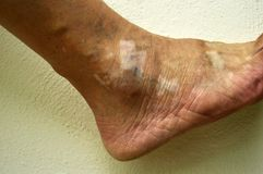 Human ankle, with condition vitiligo. Stock Image