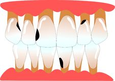 Human anterior teeth with periodontitis and caries. Human anterior teeth with periodontitis and lots of caries Stock Illustration