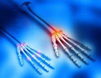 Human arm bones Royalty Free Stock Image