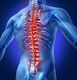 Human-Back-Pain. Human backache and back pain with an upper torso body skeleton showing the spine and vertebral column in red highlight as a medical health care stock illustration
