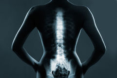 Human backbone in x-ray Royalty Free Stock Images