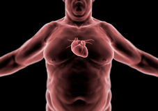 Human body, fat person, heart Royalty Free Stock Photo