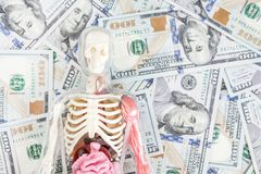 Human body model with skeleton and internal organs over us dollar money background. Transplantation concept. Expenses of. Treatment. Black market royalty free stock photo
