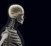 The human body (organs) by X-rays on black background Royalty Free Stock Photo