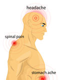 Human body with pain dots Stock Photo