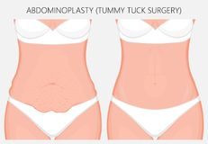 Human body problem_Abdominoplasty. Realistic Vector illustration. Abdominoplasty, tummy tuck plastic surgery in woman. Front view. For advertising of cosmetic Royalty Free Stock Photos