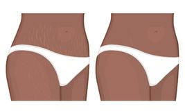 Human body problem_stretch marks on African American and Indian. Vector illustration Human body problem Healing of stretch marks on African American Indian women Royalty Free Stock Images